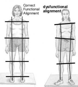 dysfunctional-vs-functional alignment for injury prevention